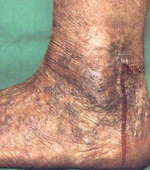 Беременность варикоз органов
