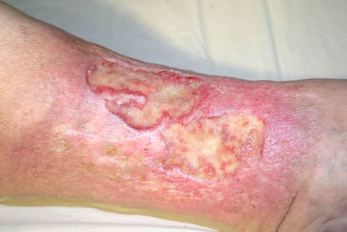 Вздуваются вены на руках и ногах и болят ноги